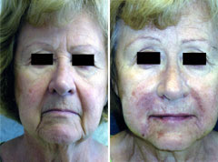 Restylane face before and after photo
